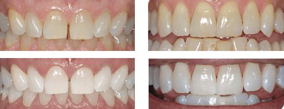 Antes y después del blanqueamiento dental en Madrid