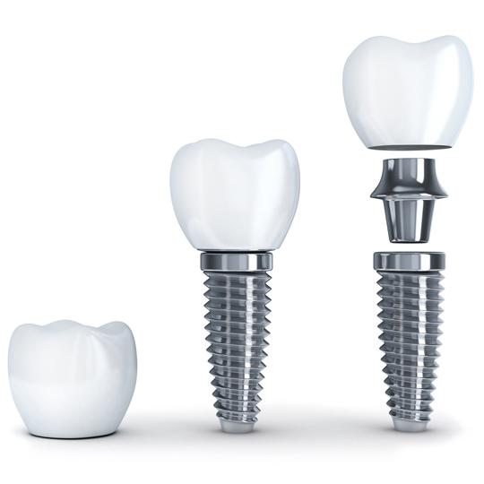 Implantes dentales en Madrid. Clínica Dental en Madrid Fernando Soria