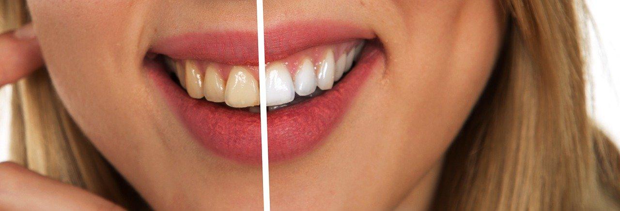 cuidado bucal - salud bucal