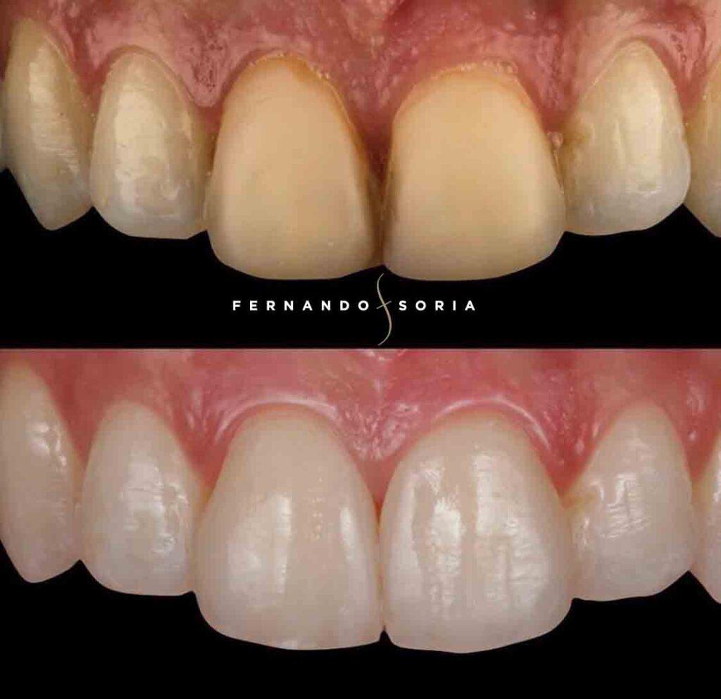 Antes y después clínica dental Madrid Fernando Soria - Uno de los mejores dentistas de Madrid