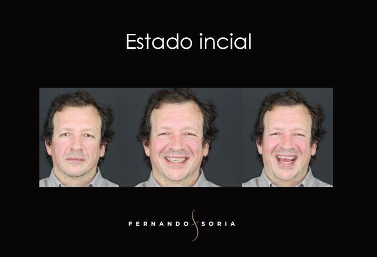 Diseño Digital de la Sonrisa - Clinica Dental Madrid Fernando Soria