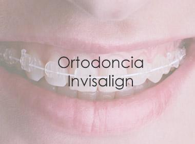 Ortodoncia Invisalign en la Clínica Dental Madrid Fernando Soria