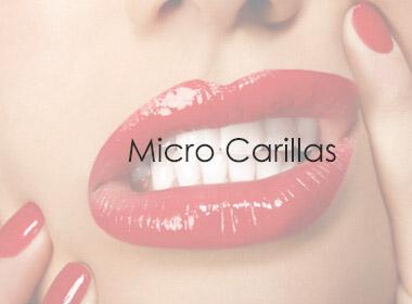 Micro Carillas - Clínicas Dentales Madrid