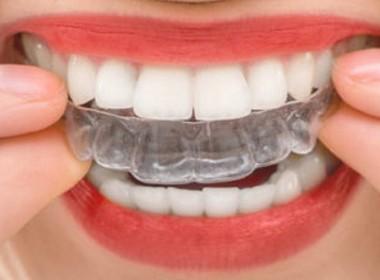 Invisalign. Dentista Madrid - Clínica Dental Madrid