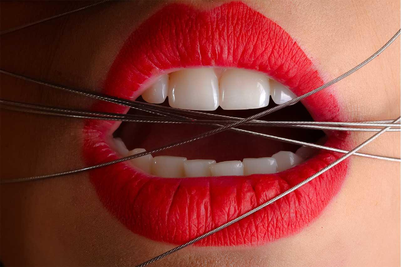 desgaste de dientes - Clínica Dental Madrid